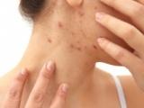 Acné sévère: de nouvelles recommandations pour améliorer la sécurité d'utilisation de l'isotrétinoïne
