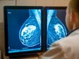 Dépistage du cancer du sein : la mammographie par tomosynthèse est-elle sure ?