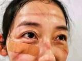 Plusieurs photos diffusées sur les réseaux sociaux chinois dévoilent les visages ravagés de médecins à force de porter des masques