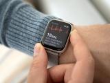 Un cardiologue accuse Apple d'avoir volé son concept d'ECG sur les montres connectées