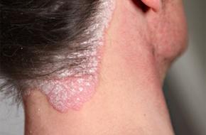 Comme traitent le psoriasis chez la personne