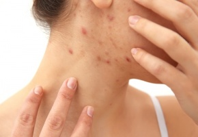 Le rôle du microbiote cutané fait l'objet d'études, en particulier dans l'acné et la dermatite atopique