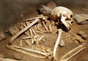 À l'occasion d'un colloque, une archéologue et un médecin légiste racontent le fruit de leur collaboration, qui va à l'encontre des pratiques françaises