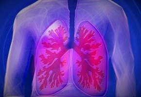 Embolie pulmonaire : exclure le diagnostic sans réaliser d ...
